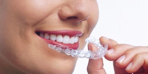 S0okJ Выпрямление зубов без брекетов – больше не фантастика